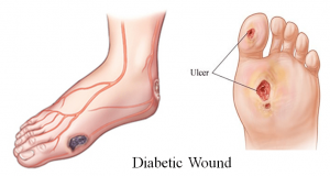 Healing Diabetic Wounds with HOCl 1